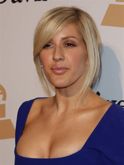 What happened to Ellie Goulding's face? Fans speculate